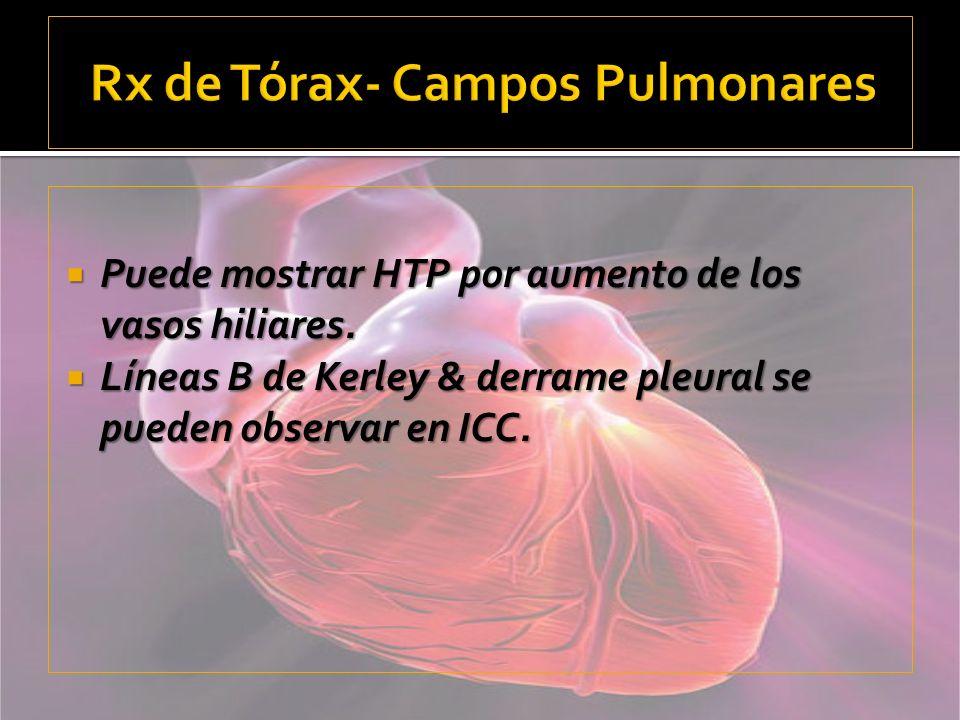 Rx de Tórax- Campos Pulmonares