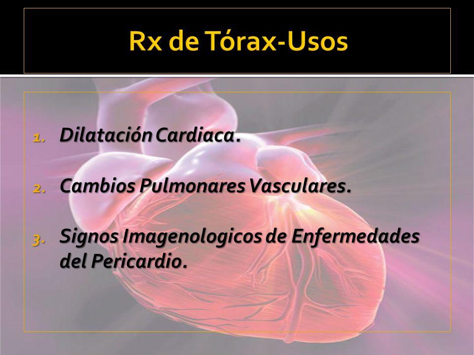Rx de Tórax-Usos Dilatación Cardiaca. Cambios Pulmonares Vasculares.