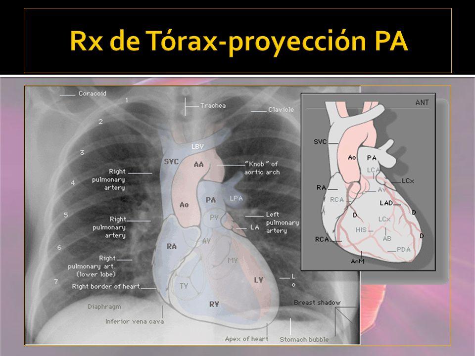 Rx de Tórax-proyección PA