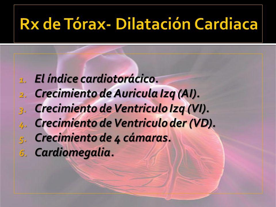 Rx de Tórax- Dilatación Cardiaca