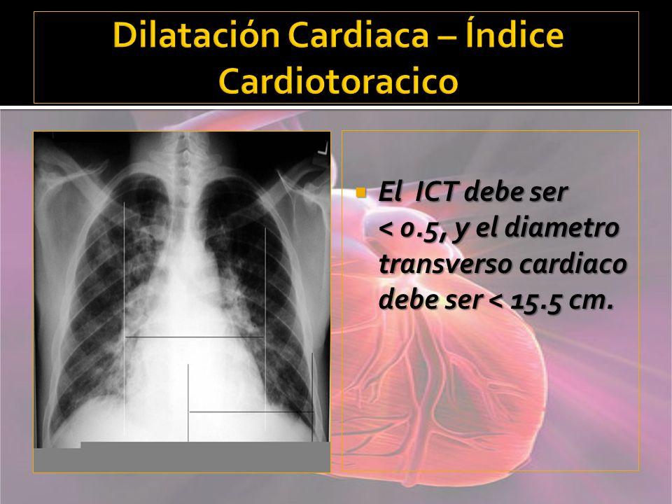 Dilatación Cardiaca – Índice Cardiotoracico