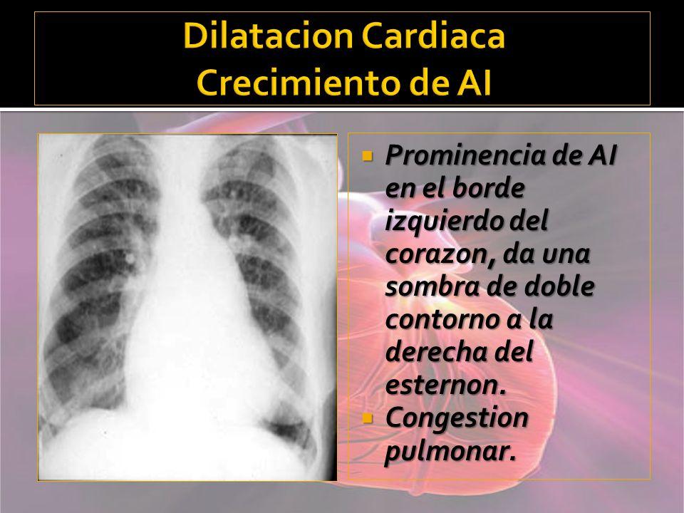 Dilatacion Cardiaca Crecimiento de AI