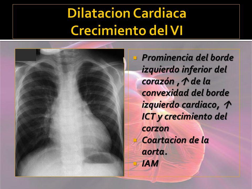 Dilatacion Cardiaca Crecimiento del VI