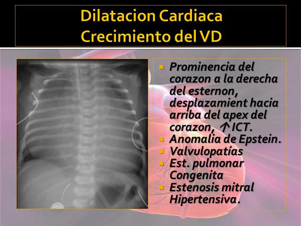 Dilatacion Cardiaca Crecimiento del VD
