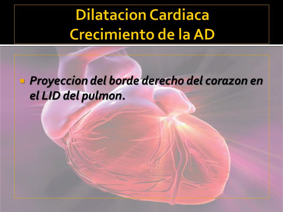 Dilatacion Cardiaca Crecimiento de la AD
