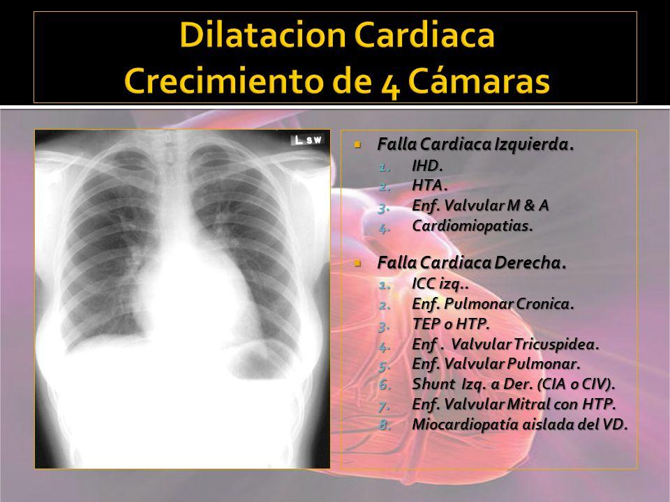 Dilatacion Cardiaca Crecimiento de 4 Cámaras