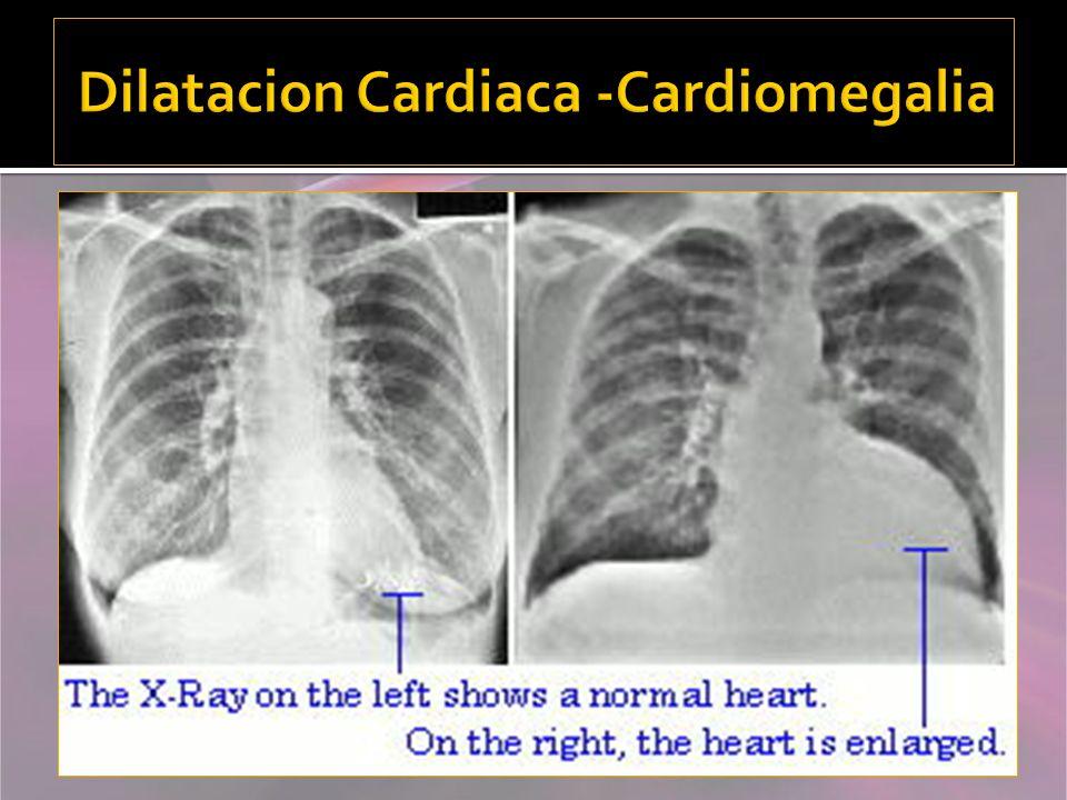Dilatacion Cardiaca -Cardiomegalia
