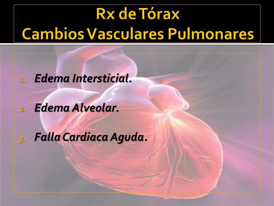 Rx de Tórax Cambios Vasculares Pulmonares