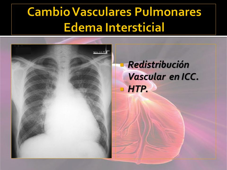 Cambio Vasculares Pulmonares Edema Intersticial