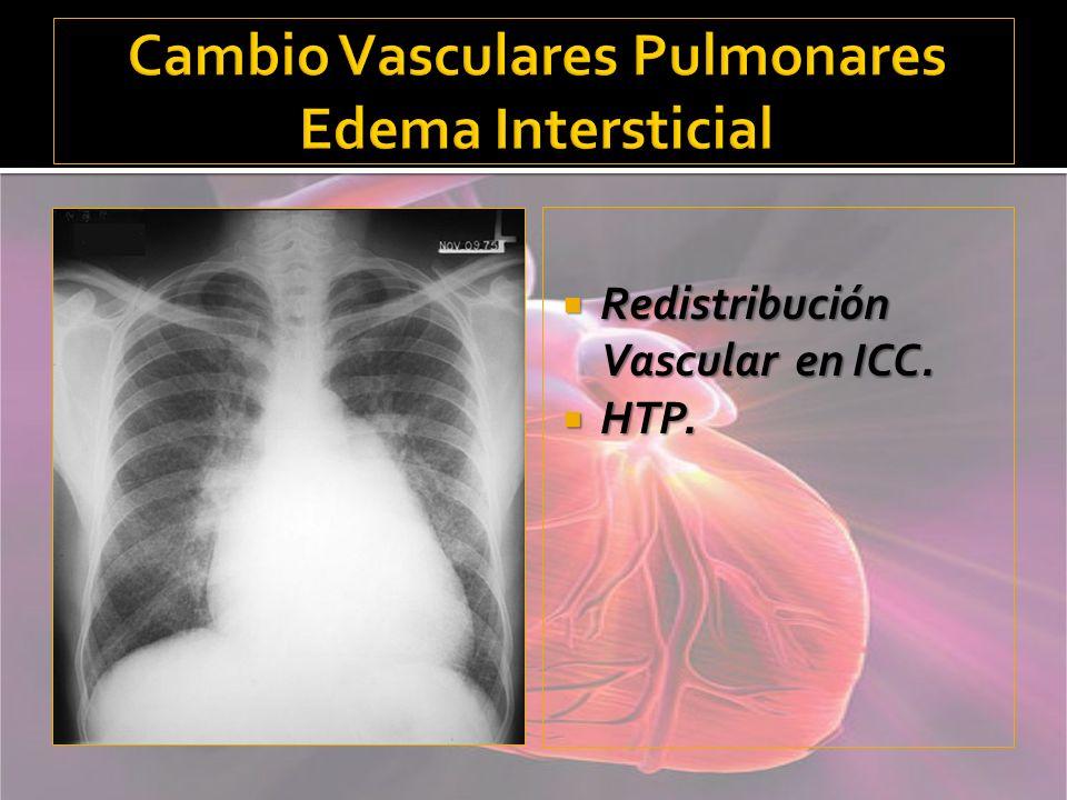 Cambio Vasculares Pulmonares Edema Intersticial