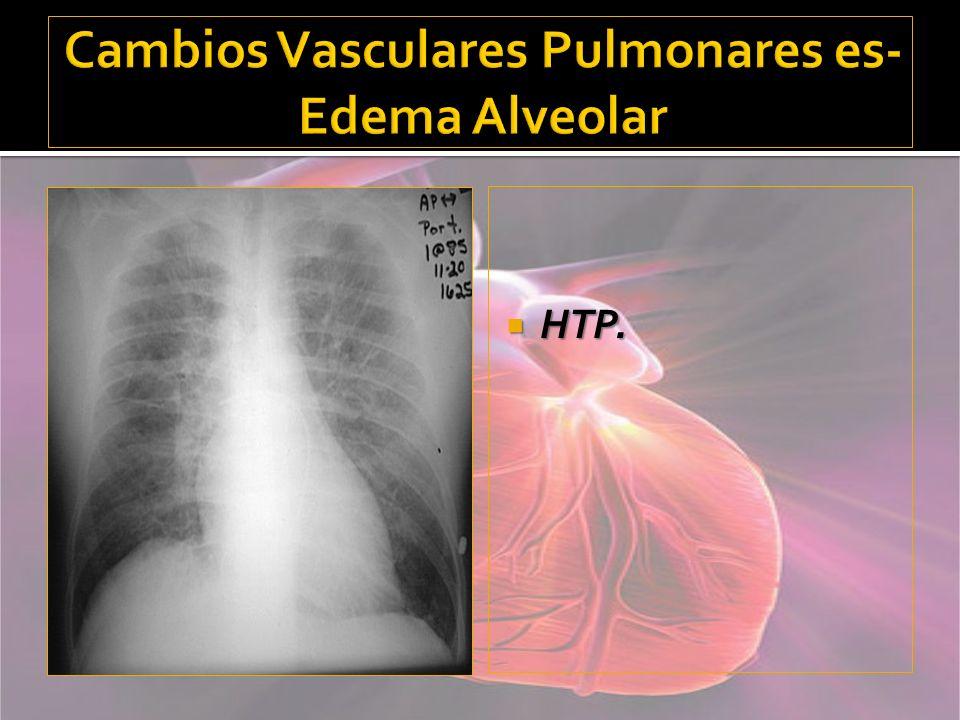Cambios Vasculares Pulmonares es- Edema Alveolar