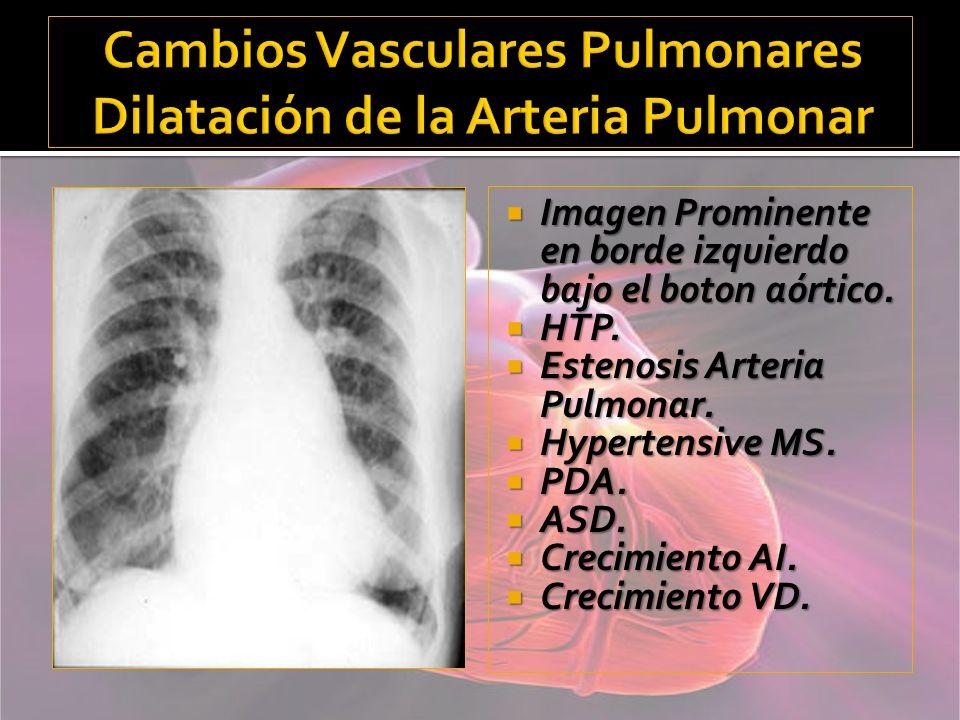 Cambios Vasculares Pulmonares Dilatación de la Arteria Pulmonar