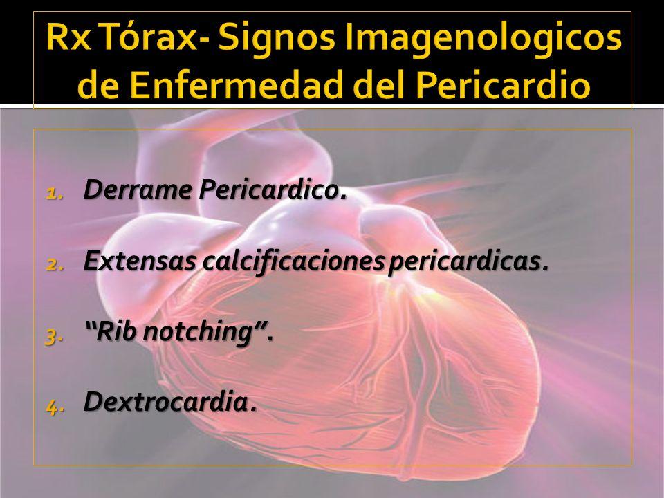 Rx Tórax- Signos Imagenologicos de Enfermedad del Pericardio