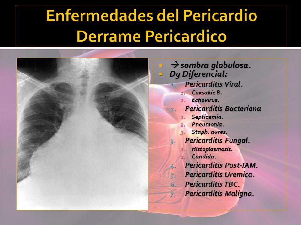Enfermedades del Pericardio Derrame Pericardico