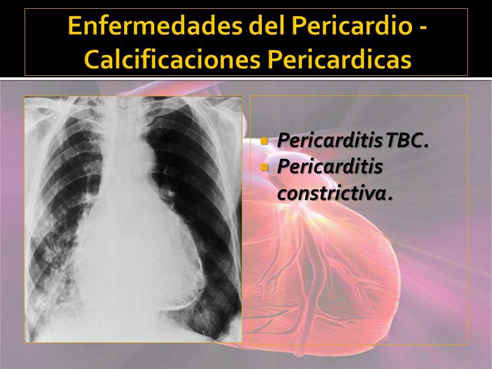 Enfermedades del Pericardio - Calcificaciones Pericardicas