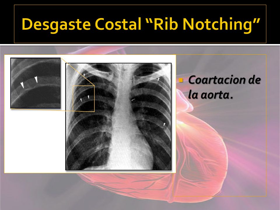 Desgaste Costal Rib Notching