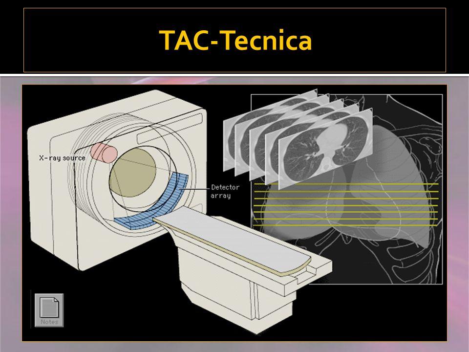 TAC-Tecnica