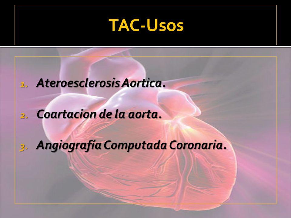 TAC-Usos Ateroesclerosis Aortica. Coartacion de la aorta.