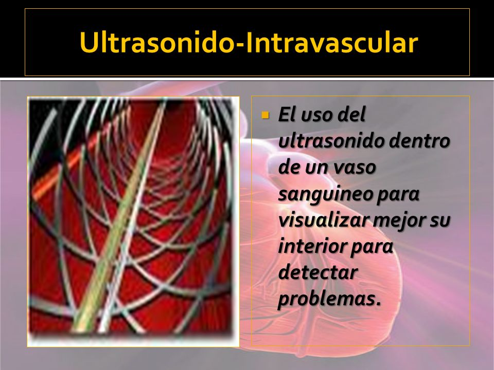 Ultrasonido-Intravascular