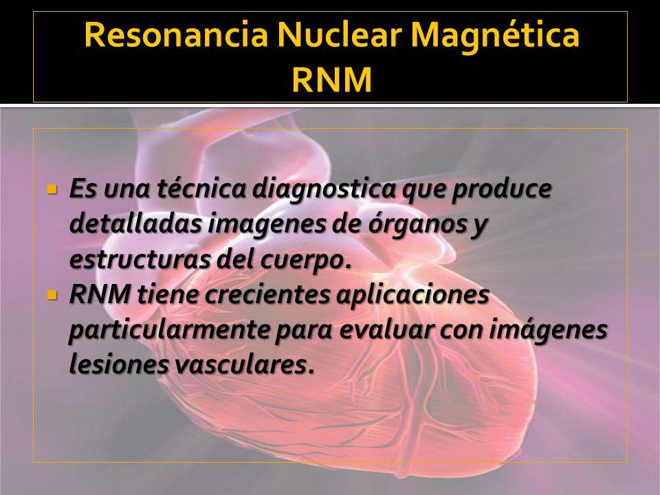Resonancia Nuclear Magnética RNM
