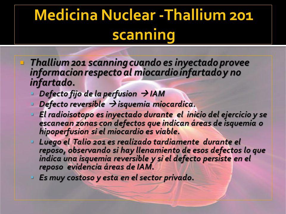Medicina Nuclear -Thallium 201 scanning