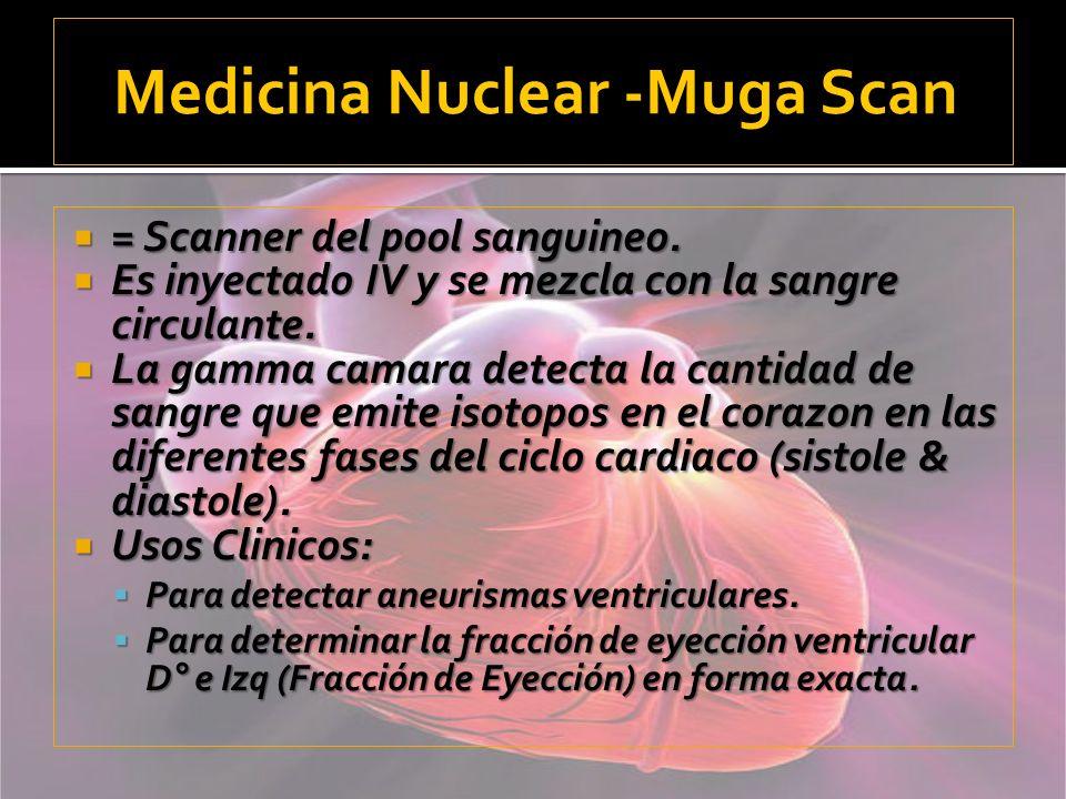 Medicina Nuclear -Muga Scan
