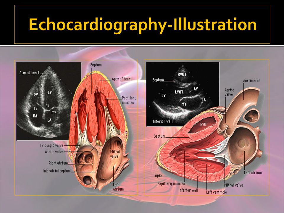 Echocardiography-Illustration