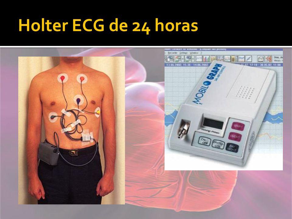 Holter ECG de 24 horas