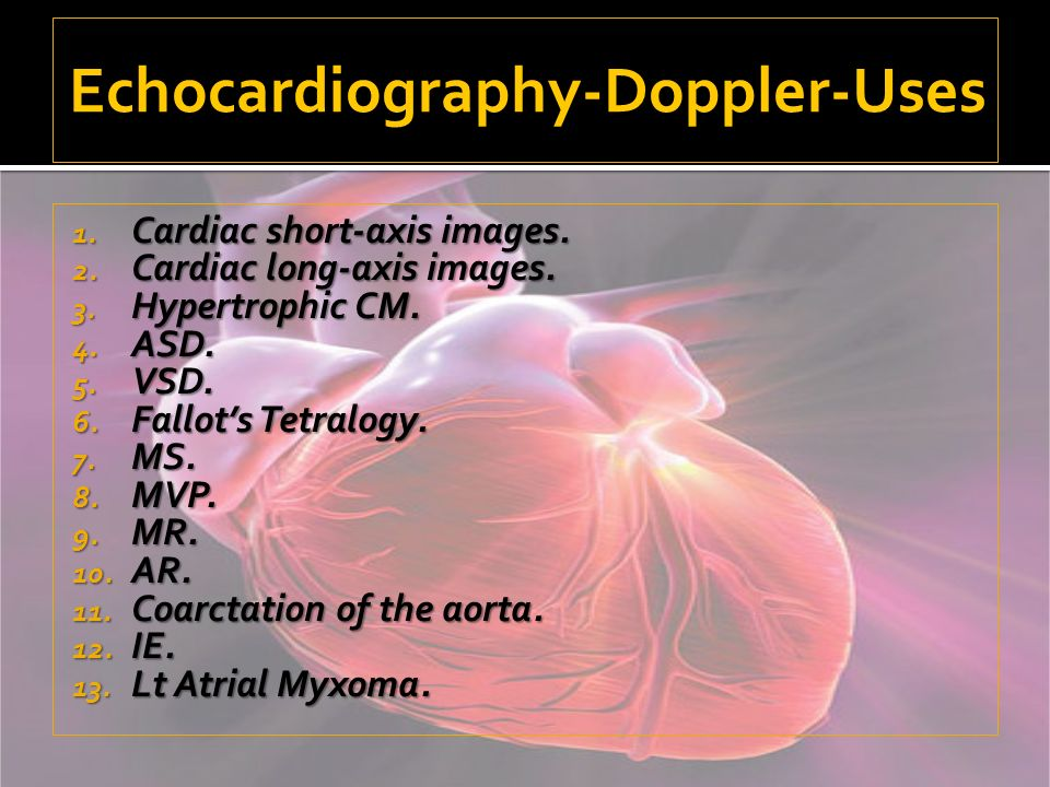 Echocardiography-Doppler-Uses