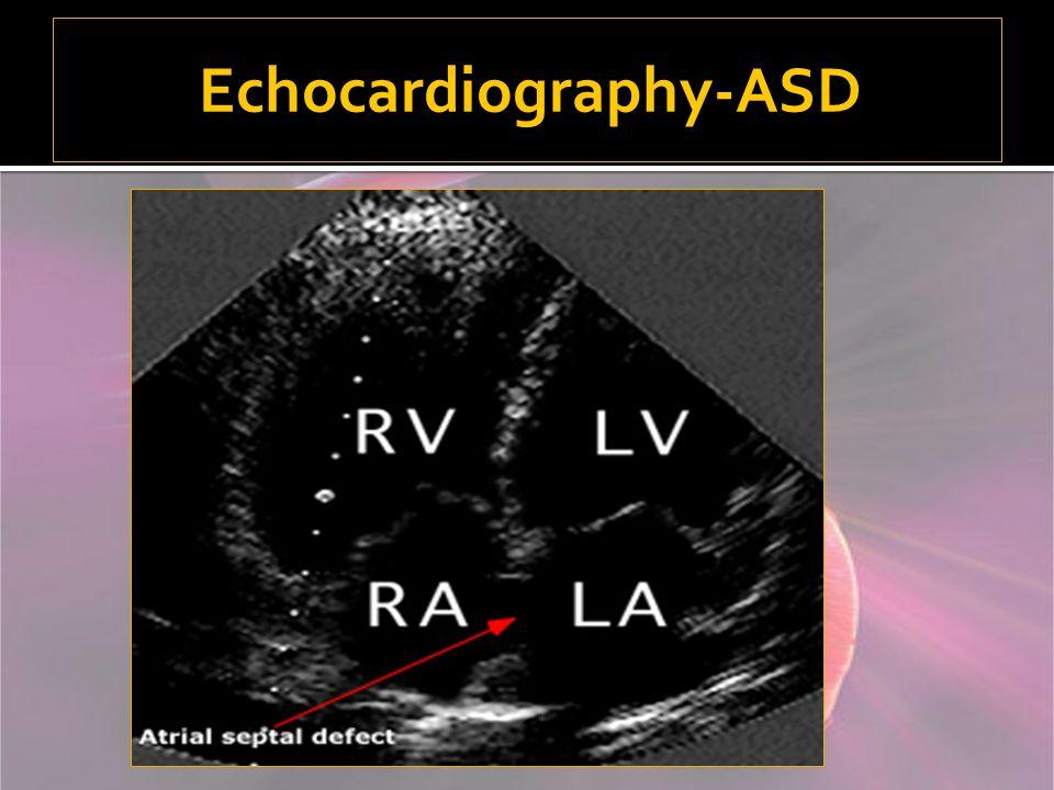 Echocardiography-ASD