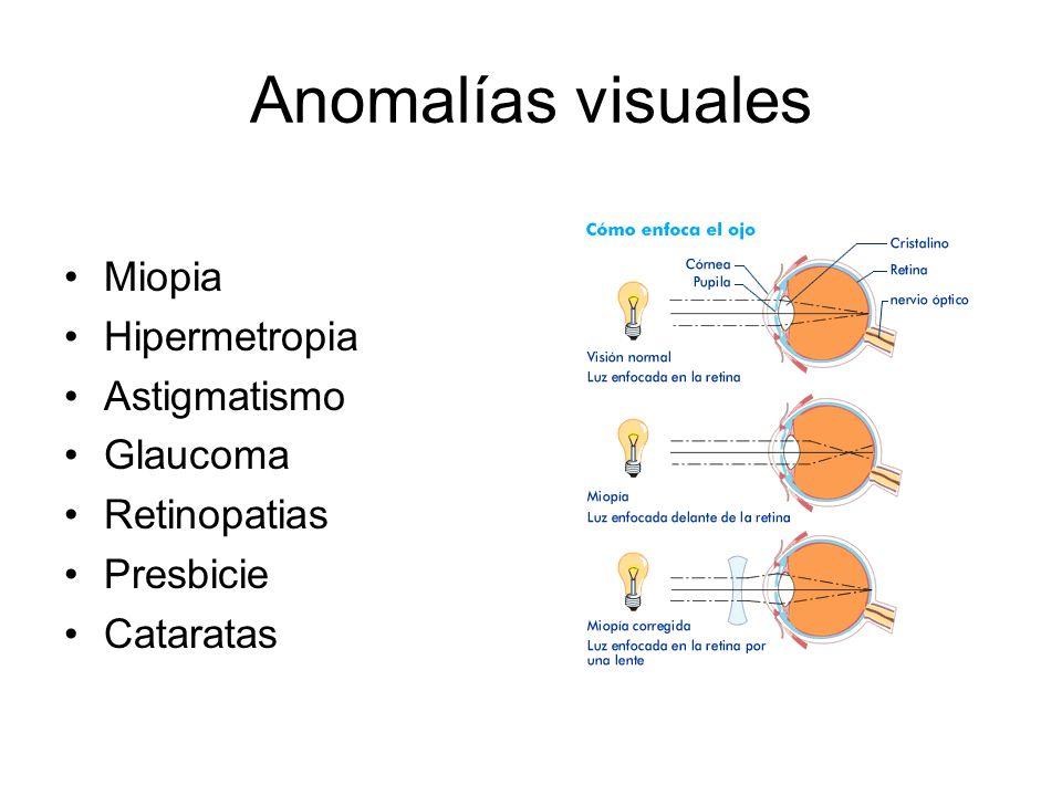Anomalías visuales Miopia Hipermetropia Astigmatismo Glaucoma