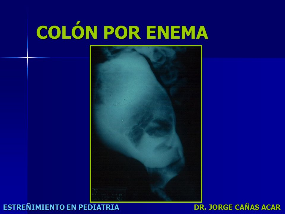 COLÓN POR ENEMA ESTREÑIMIENTO EN PEDIATRIA DR. JORGE CAÑAS ACAR