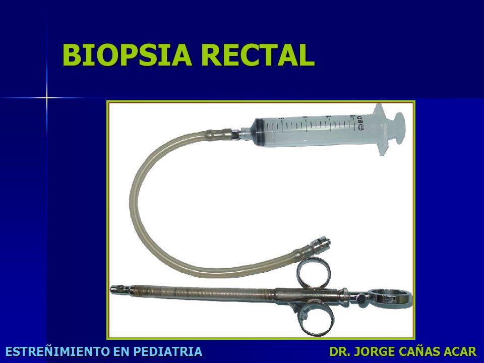 BIOPSIA RECTAL ESTREÑIMIENTO EN PEDIATRIA DR. JORGE CAÑAS ACAR