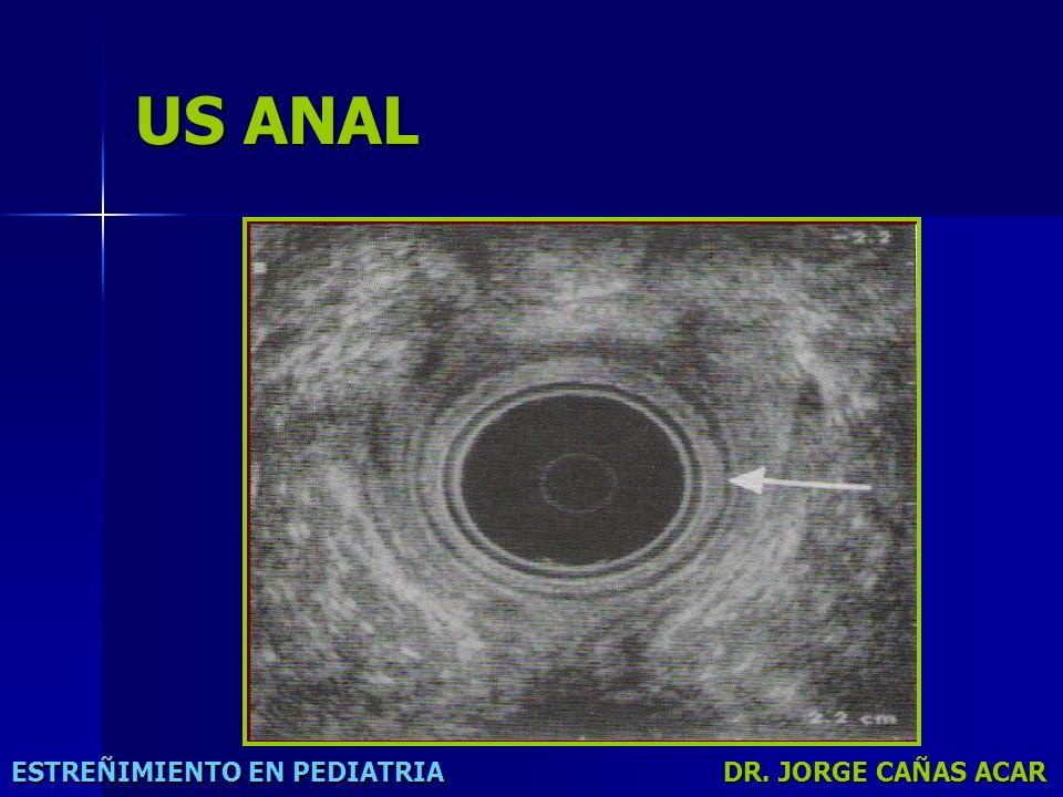US ANAL ESTREÑIMIENTO EN PEDIATRIA DR. JORGE CAÑAS ACAR
