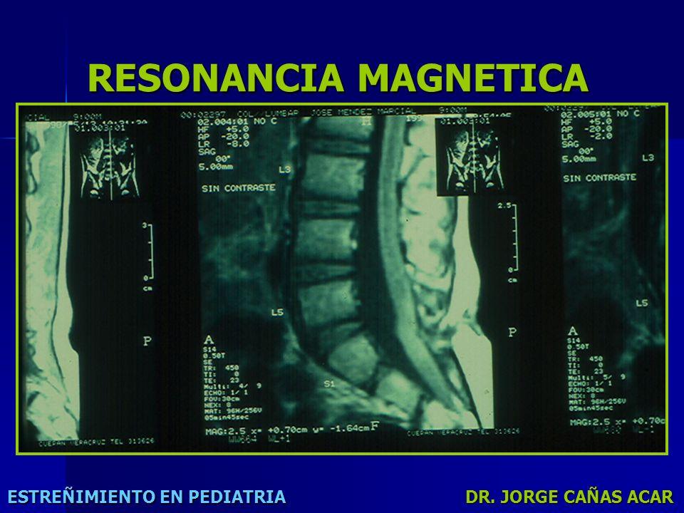 RESONANCIA MAGNETICA ESTREÑIMIENTO EN PEDIATRIA DR. JORGE CAÑAS ACAR