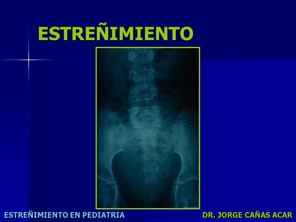 ESTREÑIMIENTO ESTREÑIMIENTO EN PEDIATRIA DR. JORGE CAÑAS ACAR
