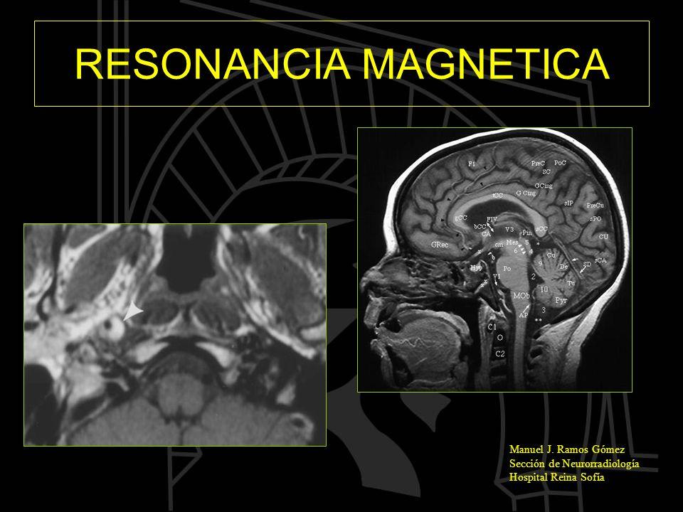 RESONANCIA MAGNETICA Manuel J. Ramos Gómez Sección de Neurorradiología