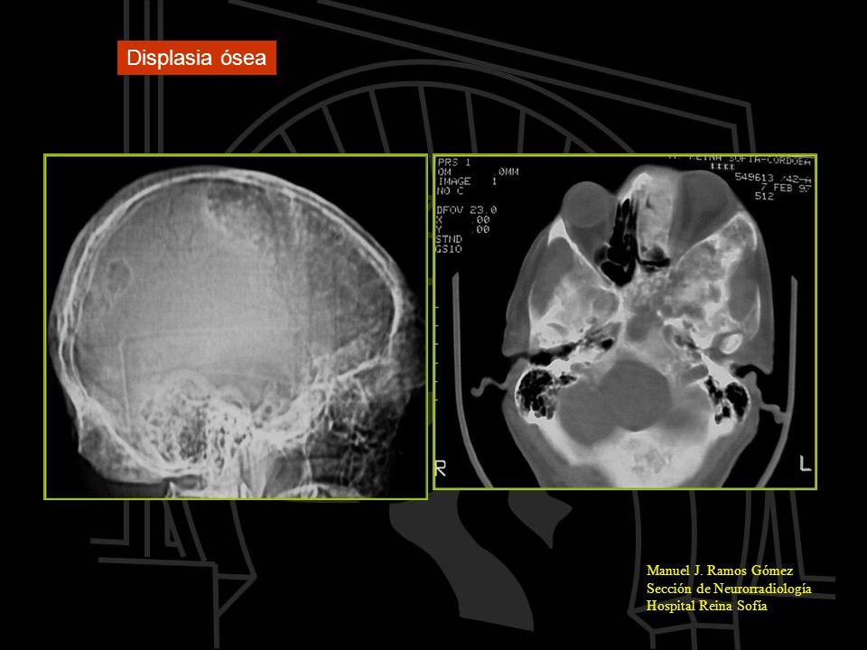 Displasia ósea Manuel J. Ramos Gómez Sección de Neurorradiología