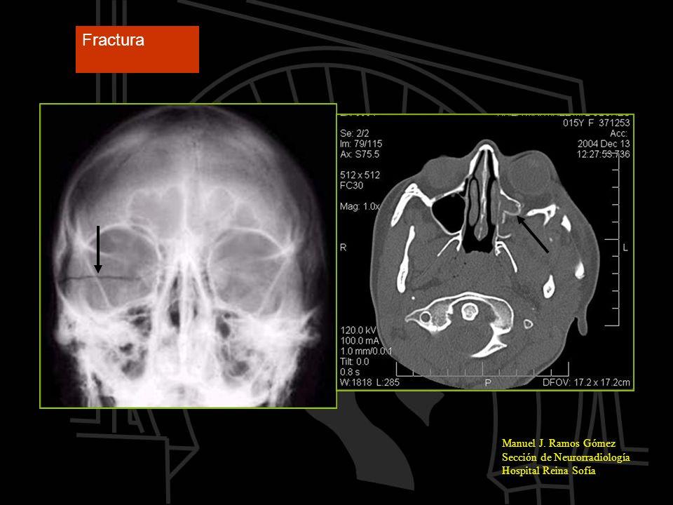 Fractura Manuel J. Ramos Gómez Sección de Neurorradiología