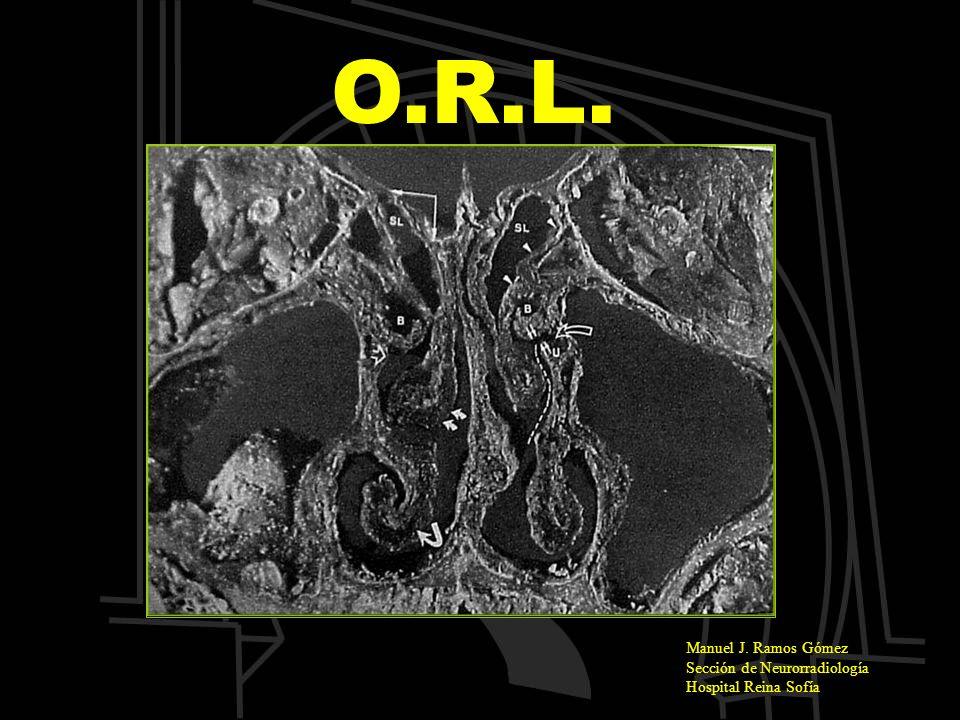 O.R.L. Manuel J. Ramos Gómez Sección de Neurorradiología