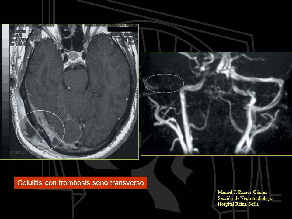 Celulitis con trombosis seno transverso