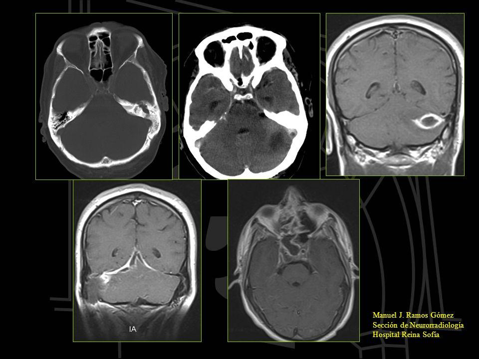 Manuel J. Ramos Gómez Sección de Neurorradiología Hospital Reina Sofía