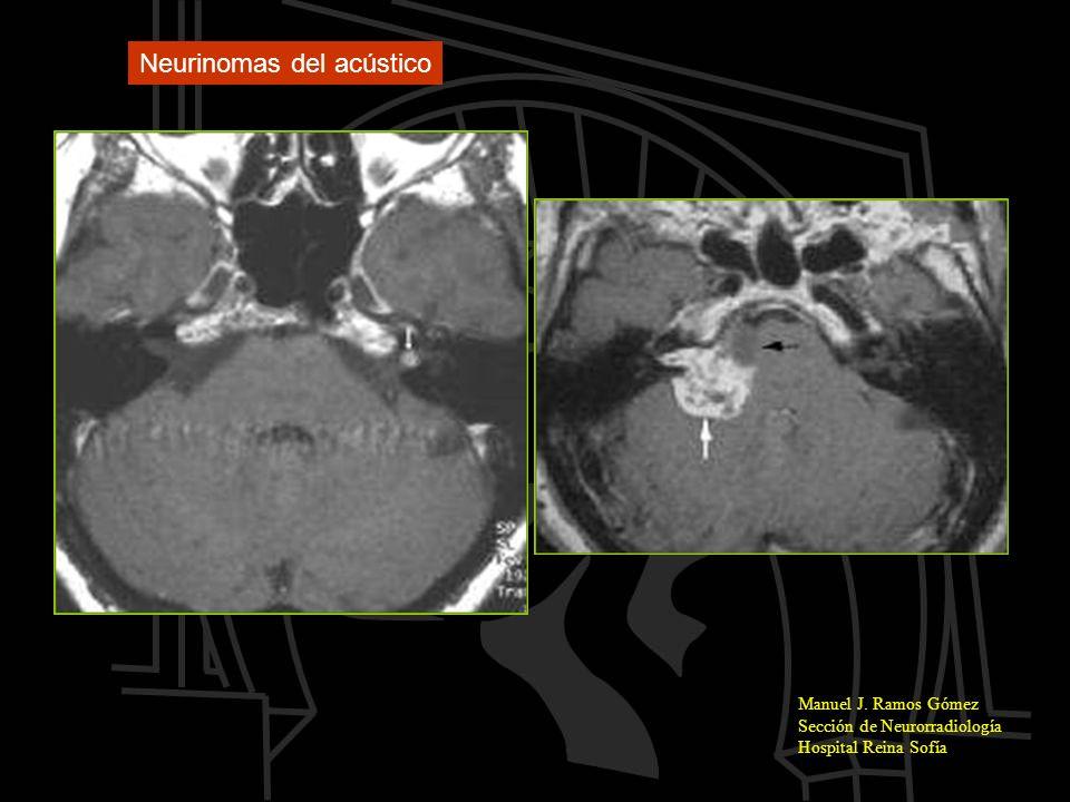 Neurinomas del acústico