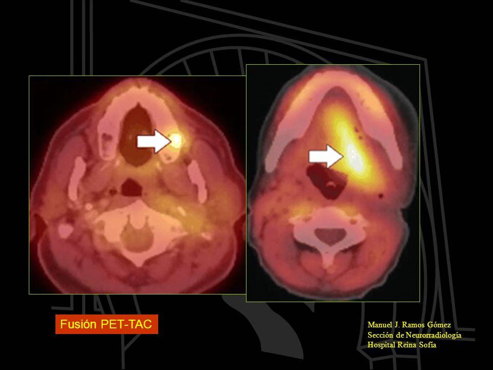 Fusión PET-TAC Manuel J. Ramos Gómez Sección de Neurorradiología