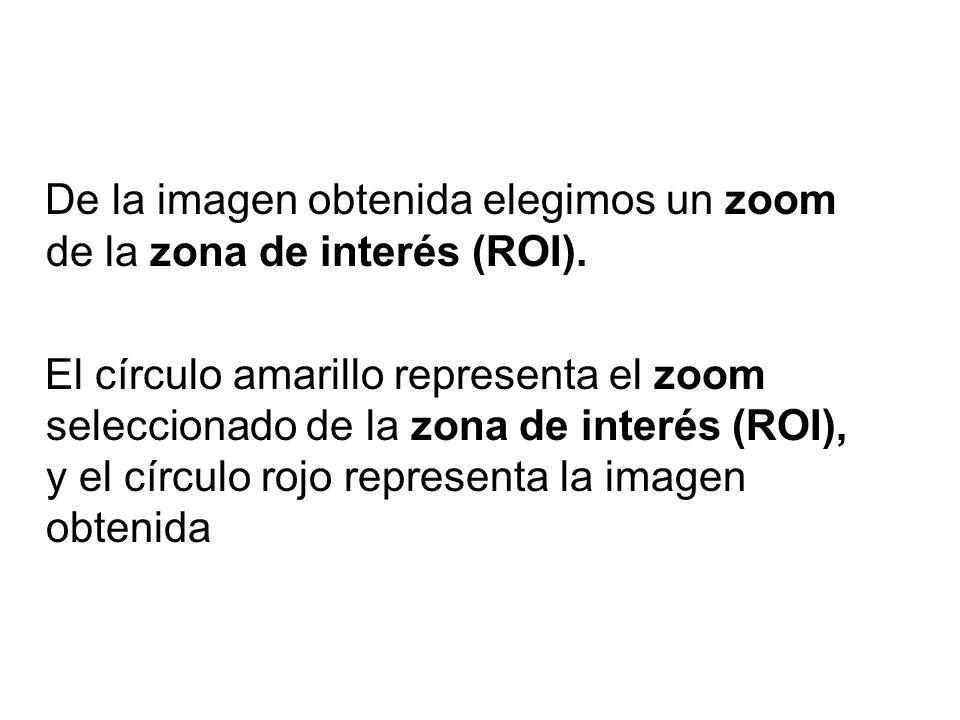 De la imagen obtenida elegimos un zoom de la zona de interés (ROI).