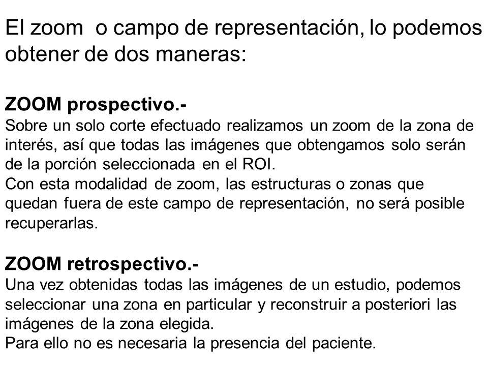 El zoom o campo de representación, lo podemos obtener de dos maneras: ZOOM prospectivo.- Sobre un solo corte efectuado realizamos un zoom de la zona de interés, así que todas las imágenes que obtengamos solo serán de la porción seleccionada en el ROI.