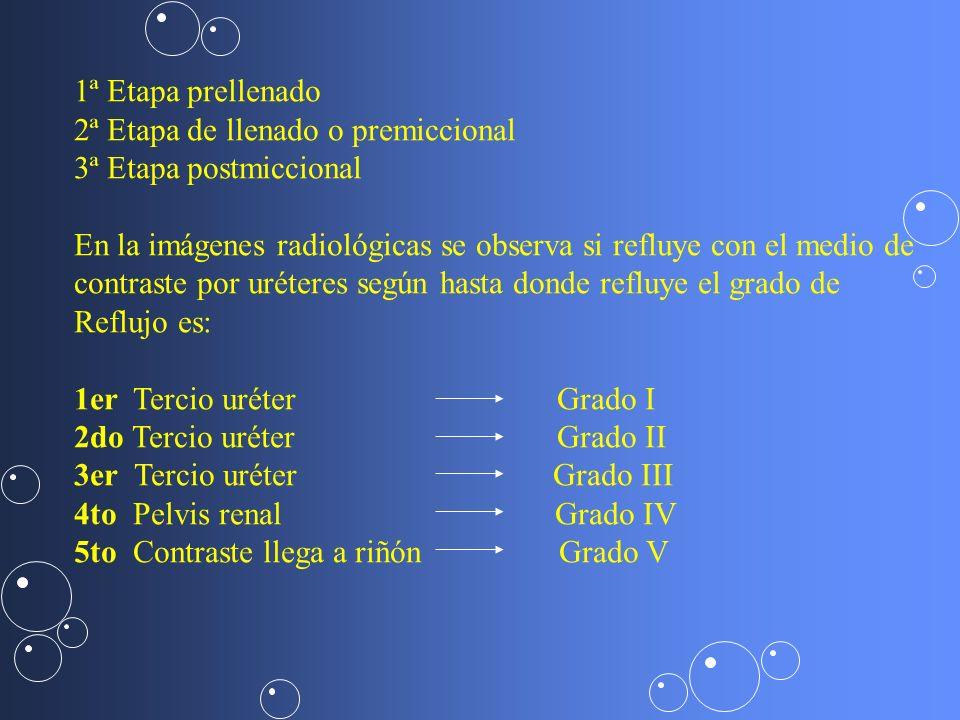 1ª Etapa prellenado2ª Etapa de llenado o premiccional. 3ª Etapa postmiccional. En la imágenes radiológicas se observa si refluye con el medio de.