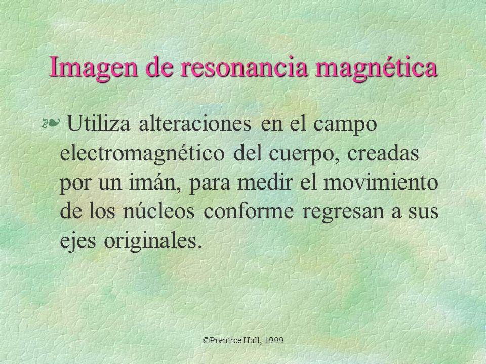 Imagen de resonancia magnética
