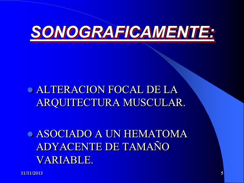 SONOGRAFICAMENTE: ALTERACION FOCAL DE LA ARQUITECTURA MUSCULAR.