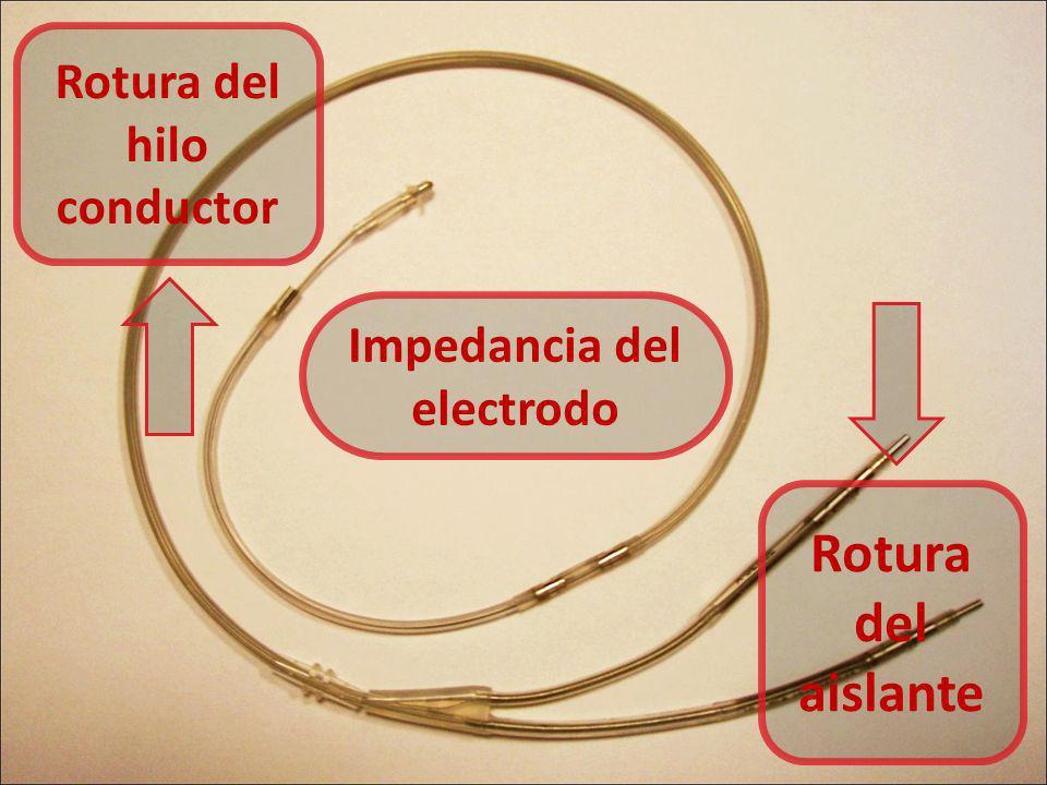 Rotura del hilo conductor Impedancia del electrodo